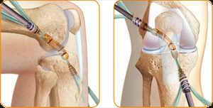 New Anterior Cruciate Ligament Surgery